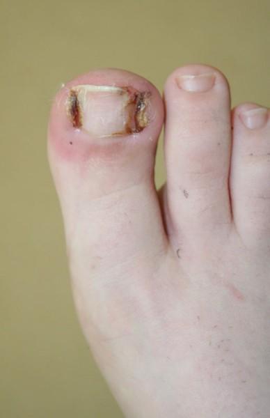 Pathologies pieds Montreuil